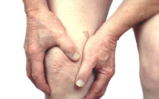 Как лечить артрит колена в домашних условиях