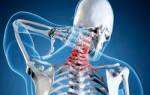 Грыжа шейного отдела позвоночника симптомы и лечение фото