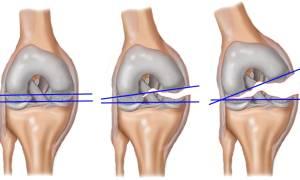 Реабилитация после пластики пкс коленного сустава