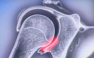 Лфк при вывихе плечевого сустава комплекс упражнений