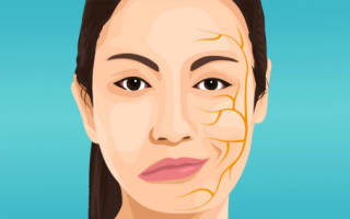 Мкб неврит лицевого нерва код