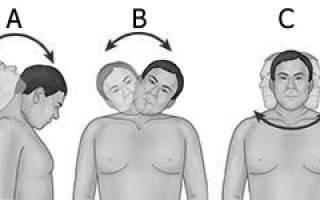 S образный сколиоз грудно поясничного отдела упражнения