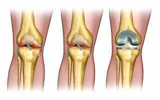 Протезирование коленного сустава сколько заживает