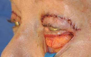 Грыжи на веках глаз лечение без операции