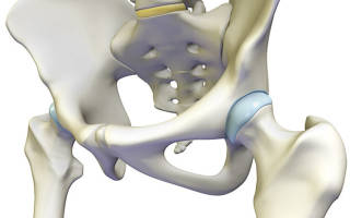 Гимнастика при заболевании тазобедренного сустава