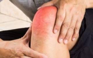 Как лечить специфический инфекционный артрит