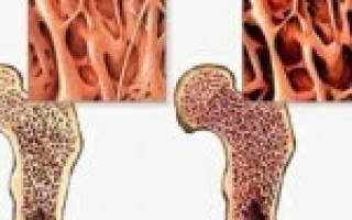 Можно ли вылечить остеопороз позвоночника