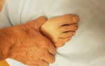 Ревматоидный артрит клиники в москве