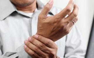 Псориатический артрит позвоночника симптомы и лечение