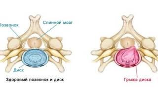 Лечение грыжи грудного отдела позвоночника