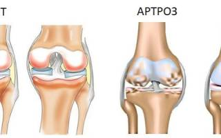 Чем опасен артрит и артроз