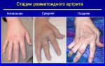 Ранняя стадия ревматоидного артрита характеризуется