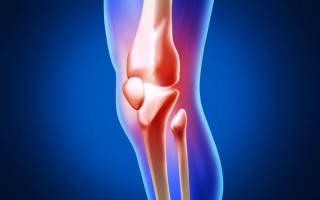 Что такое остеоартроз его причины и симптомы лечение