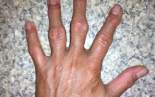 Гнойный артрит на пальце руки