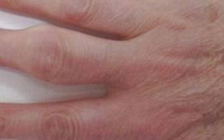 Опухают суставы на пальцах рук что делать