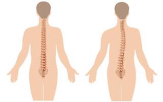 Болит спина из за сколиоза
