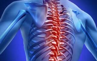 Грудной остеохондроз как снять боль