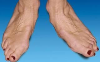 Артроз стопы симптомы и лечение