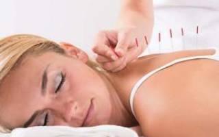 Иглоукалывание при остеохондрозе поясничного отдела