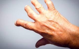 Лечение ревматоидного артрита стволовыми клетками в россии