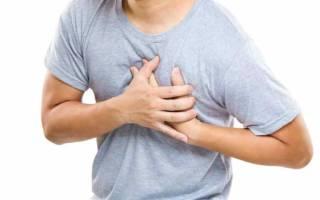 Межреберная невралгия симптомы и лечение медикаментозное