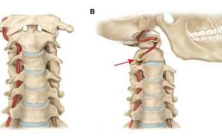 Синдром вертебральной артерии на фоне шейного остеохондроза
