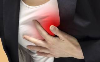 Межреберная невралгия слева будто ток в мышце