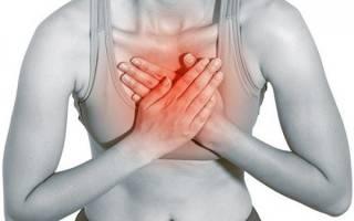 Как вылечить межреберную невралгию грудной клетки