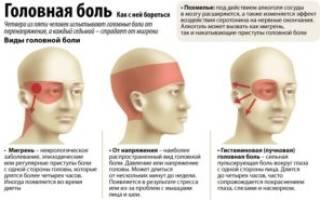 Почему болит голова при шейном остеохондрозе