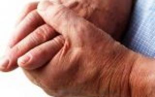 Первые симптомы артрита пальцев рук