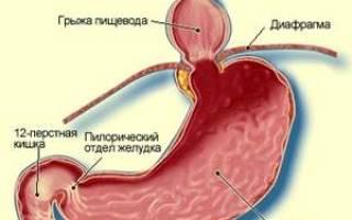 Грыжа пищеводного отверстия диафрагмы симптомы лечение