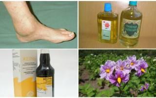 Артроз нижних конечностей лечение народными средствами