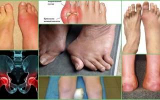 Нгс что такое артрит ног