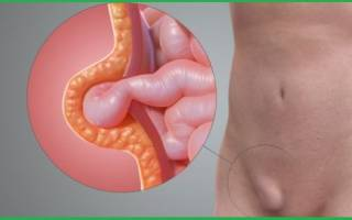Грыжа кишечника у женщин симптомы фото