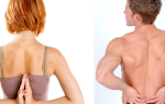 Комплекс упражнений для лечения сколиоза
