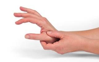Артроз большого пальца руки как лечить