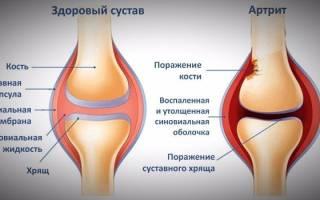 Ревматоидный артрит фото ног ступней