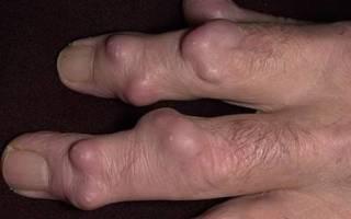 Физиопроцедуры при артрите пальцев рук