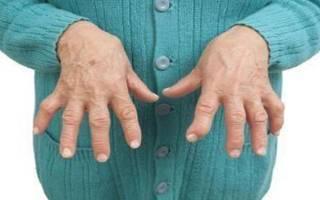 Как начинается артрит на руке