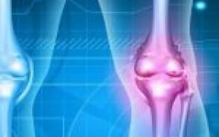 Чем лечить запущенный ревматоидный артрит