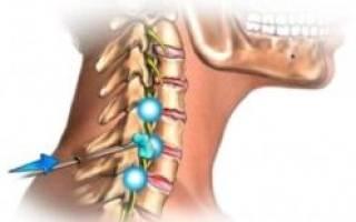 Давление из за шейного остеохондроза что делать