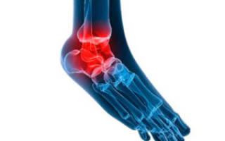 Ревматоидный артрит ног может вернуться