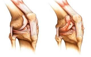 Ревматоидный артрит симптомы и лечение коленного сустава