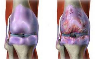 Как лечить ревматоидный артрит коленного сустава