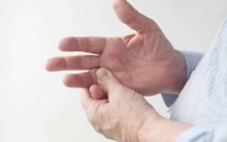 Лечение артрита в израиле отзывы
