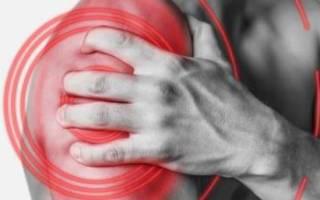 Как лечить лопаточно плечевой периартрит