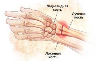 Упражнения для разработки лучезапястного сустава