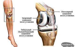 Массаж после эндопротезирования коленного сустава