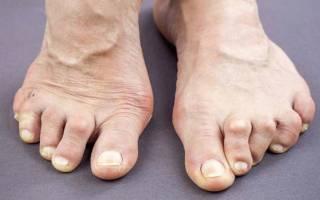 Мазь для артрита пальцев стопы