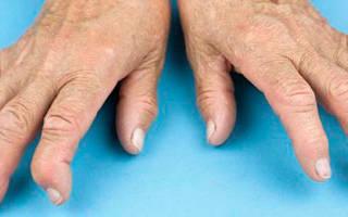 Артрит симптомы фото на ранней стадии